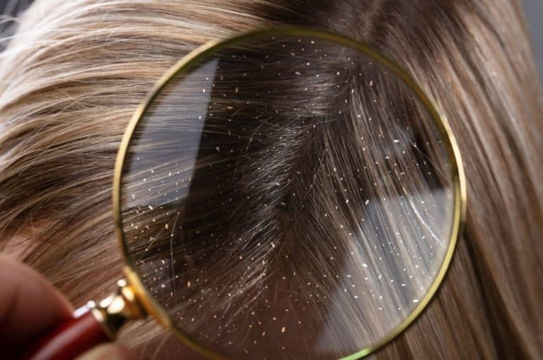 how to get rid of dandruff naturally 1