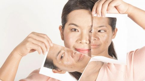 Hyperpigmentation Treatment in Singapore