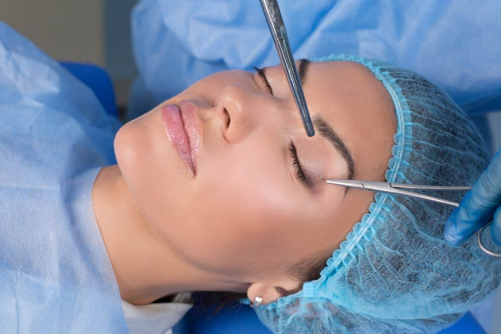 surgery to get double eyelids