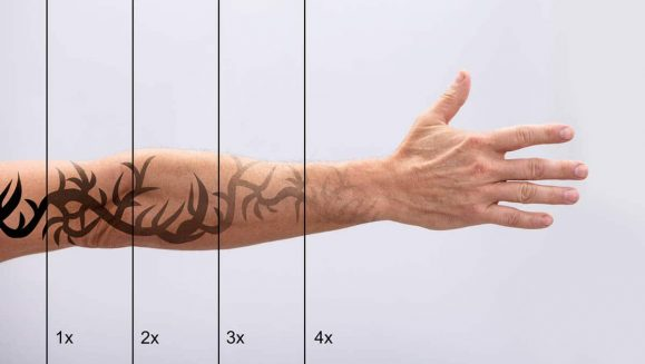 Laser Tattoo Removal On Man's Hand